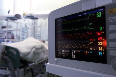 Monitoreo del reloj de los pacientes en concepto UCI