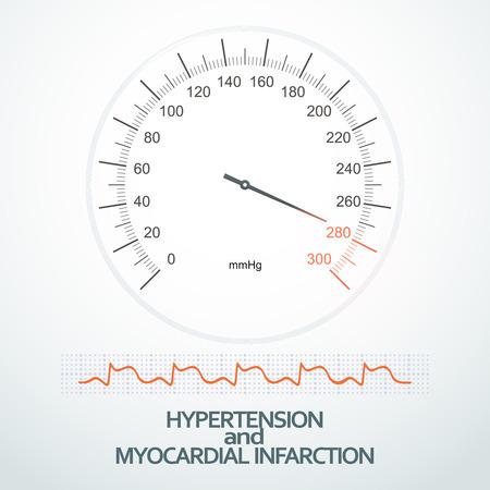 myocardial infarction: Hypertension on indicators of sphygmomanometer (tonometer) and myocardial infarction on ECG Illustration
