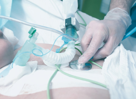 icu: Doctor stethoscope listens to the patients lungs in ICU