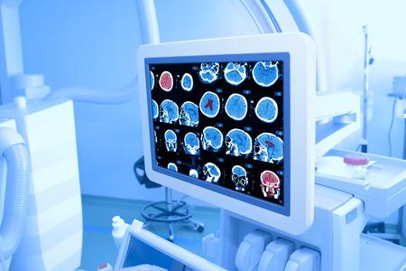 在醫院的病房裡的X射線監測器 版權商用圖片
