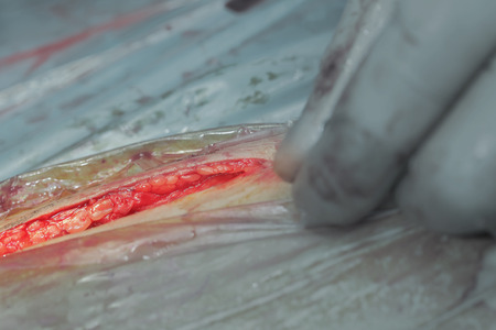dissection: Dissection of the skin during surgical operation