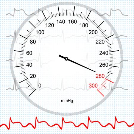 myocardial: Hypertension and myocardial infarction Illustration