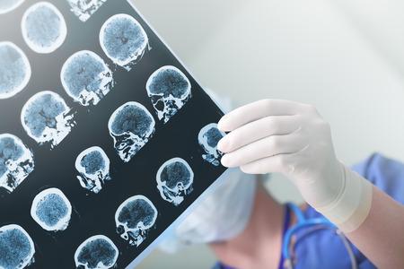 醫學專家研究了患者的腦電圖條件 版權商用圖片