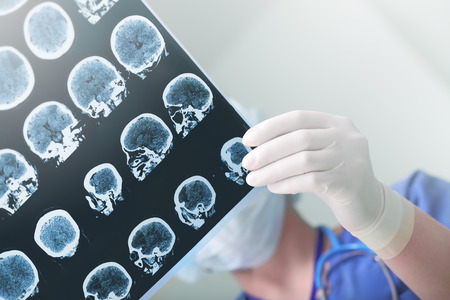Medical experts studied the EEG condition of the patient