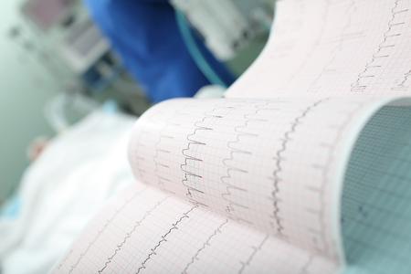 intensive care unit: ECG interpretation in the intensive care unit
