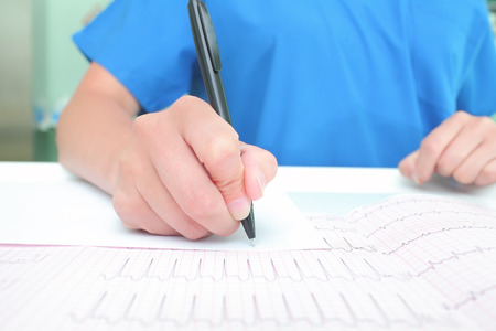 arrhythmias: Medical experts are studying the ECG recording