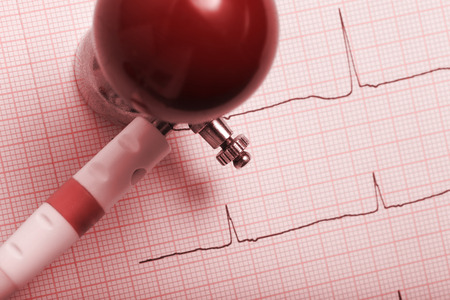 arrhythmias: Picture of the patients an electrocardiogram