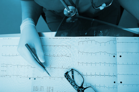 arrhythmias: Medical experts are studying the ECG condition of the patient Stock Photo