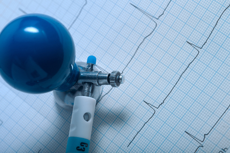 arrhythmias: Medical data with cardiogram and the electrode of ECG machine