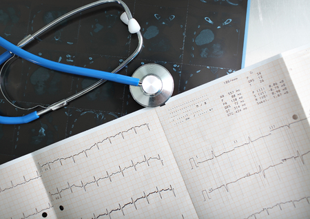 criterion: Discussion on documents (ECG) of the patient