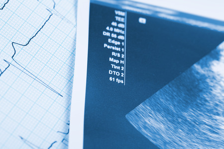 posterity: Medical documents as a concept of screening during pregnancy