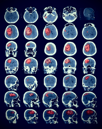 medical scanner: Image of the human brain with the pathology Stock Photo
