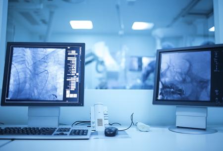 Vista della sala operatoria moderna medico a raggi X (laboratorio di cateterizzazione).