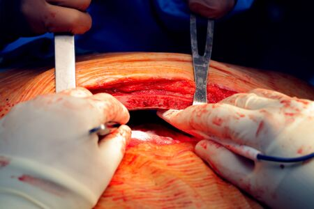 sternum: Surgeons team performing dissection of the sternum during surgery Stock Photo