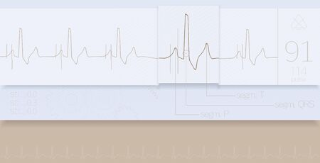 heart ecg trace: Medical and scientific technology on the surface of the monitor.