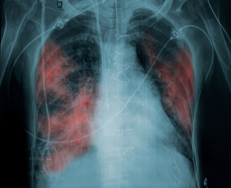 X-ray picture of a patient with lung pathology.