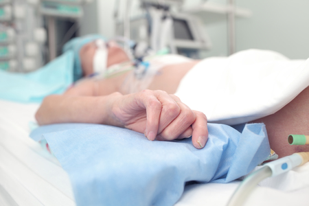 Malnourished patients in the ICU bed. Stock Photo