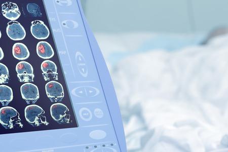 モニターに人間の脳損傷の医療スキャン