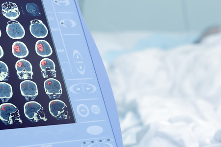 顯示器對人體的腦損傷的醫療掃描 版權商用圖片 - 51112141