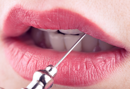 resurfacing: Female lips and medical needle, concept of plastic and aesthetic medicine.