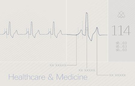 pulse trace: ECG, cardio, heart, medical background.