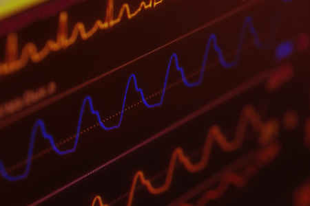 arrhythmias: Medical heartbeat monitor with curves, concept of threat to life
