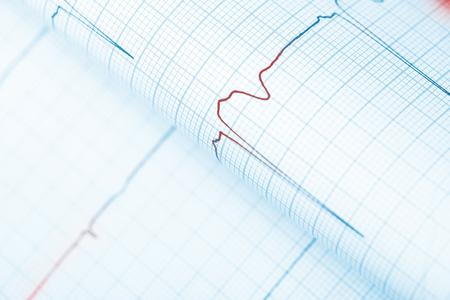 oscillations: Red-hot line graph warns of danger