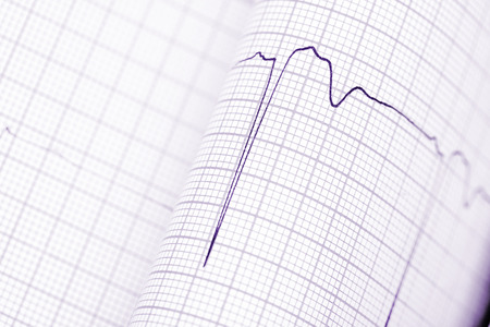 arrhythmias: Folded graph paper with ECG.