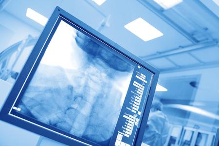 病院カテーテルラボで手術操作を監視