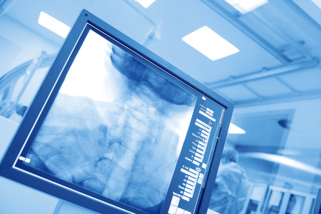 Monitoring the surgical operation in hospital cathlab Standard-Bild