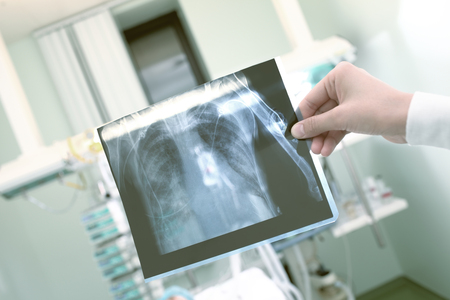 patient data: Control of examination data of a patient in critical condition. Stock Photo
