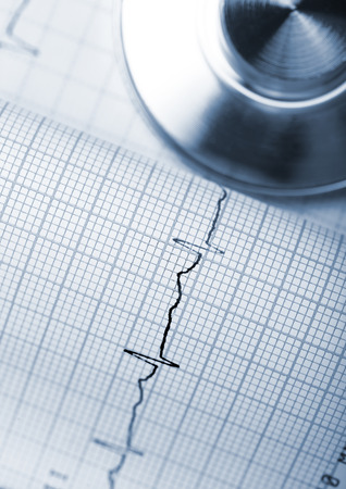 arrhythmias: Preventive examinations of cardiac activity with regular exercise. Stock Photo