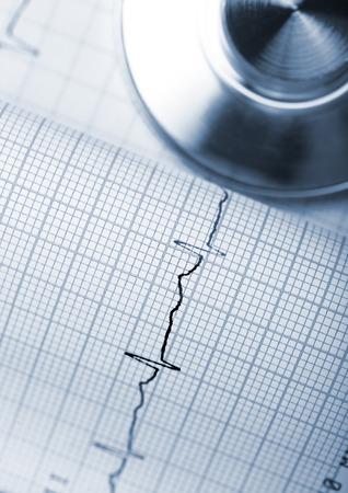 preventive: Preventive examinations of cardiac activity with regular exercise. Stock Photo
