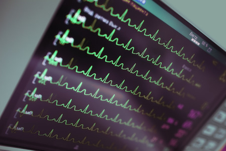Cardiac monitoring in intensive care.