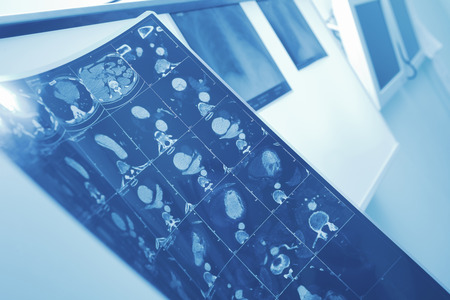 x ray equipment: MRI image of patient in doctors office. Stock Photo
