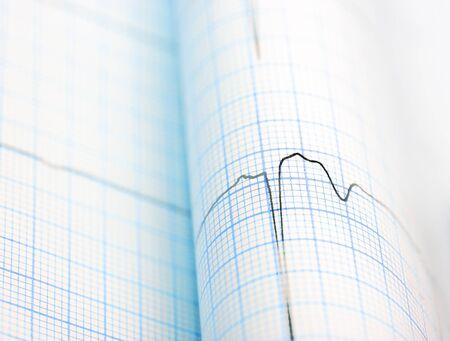 electronic survey: ECG curve folded on paper macro
