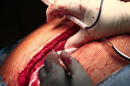 exemplary: Surgical cutting of the human chest macro