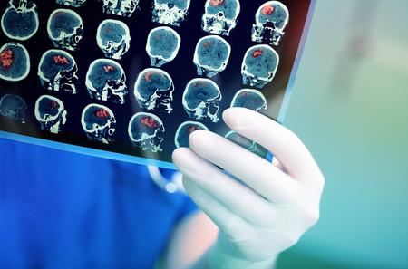 의사는 환자의 MRI 검사를주의 깊게 검사합니다.