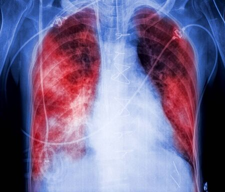 prevalence: X-rays with lungs in red color, symbol of pneumonia