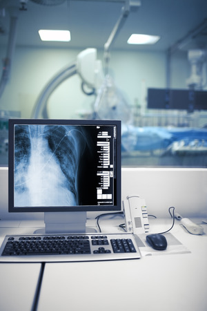 ray trace: X-ray monitoring of cardiac procedures in cathlab