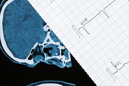 cardiogram: Fragment of CT scann and cardiogram