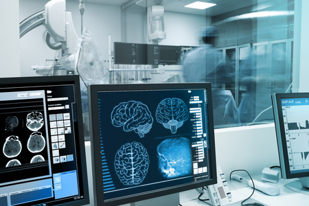 Study, visualization and practice with the human brain in x-ray laboratory. Foto de archivo