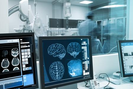 Estudio, la visualización y la práctica con el cerebro humano en laboratorio de rayos x. Foto de archivo