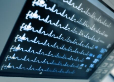 heart monitor: Blurred hospital monitor with ECG curves. Stock Photo