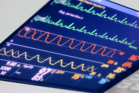 preasure: Diagrams (curves) reflecting the state of the patient on the cardiac monitor