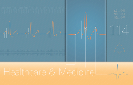 heart ecg trace: ECG complexes on Medical monitor screen