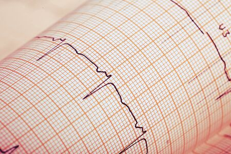 cardiological: Recording ECG on paper background