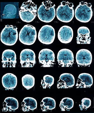 help section: CT picture of human brain.