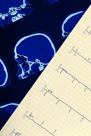 morbidity: ECG and ct scan of human brain. Stock Photo