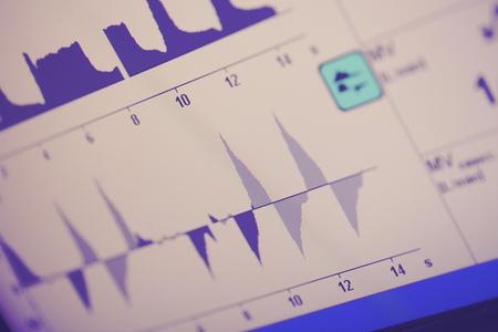 ciclos: Ciclos respiratorios en la pantalla del ventilador. Foto de archivo